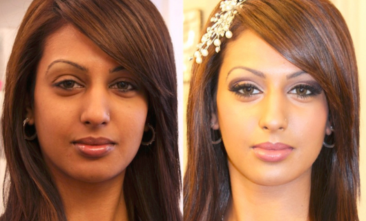 best skin lightening pills before and after