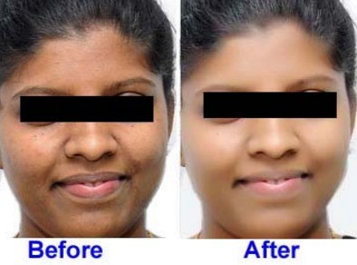 best skin lightening pills picture before and after