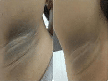 dark underarms before and after lightening