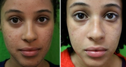 how to get rid of pimple scars from face fast