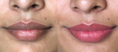 how to lighten dark lips fast