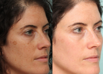 How To Remove Black Spots On Face Naturally