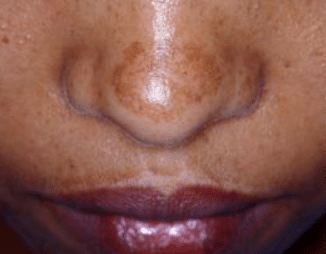 what causes black patches on face