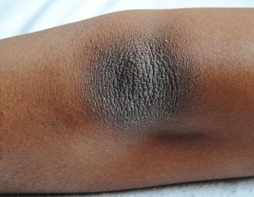 what causes dark elbows
