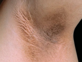 what causes dark underarms