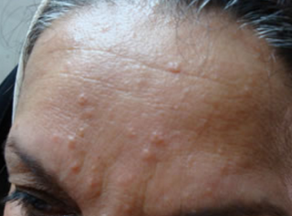 Small Skin Colored Bumps On Face Yahoo