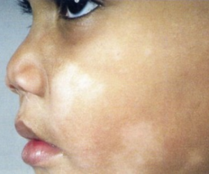 white patches on face