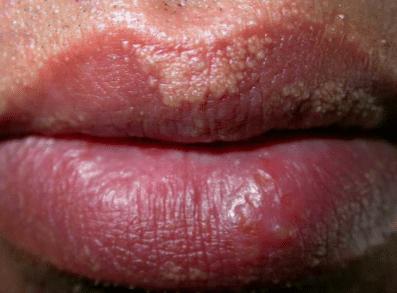 white spots on lips - Fordyce