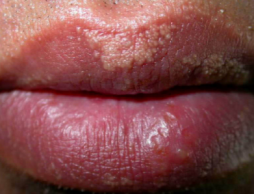 White Spots on Lips, Fordyce, Small, Inside of, Sides, Pictures, Under Skin, HPV, Get Rid of, Treatment