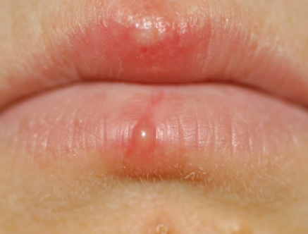 white spots on lips - pictures