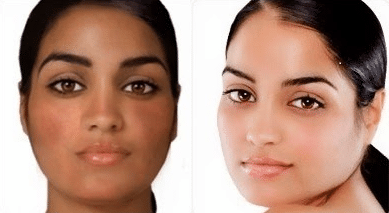 Before and after glutathione