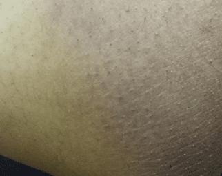 dark inner thighs causes