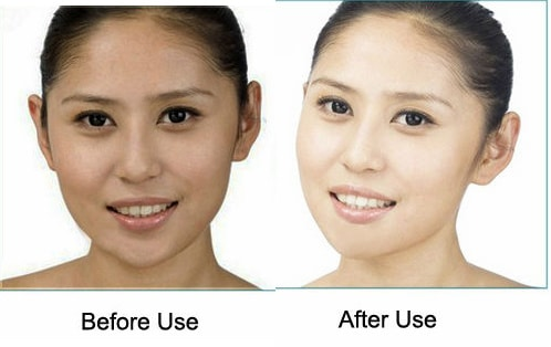 kojic acid skin lightening