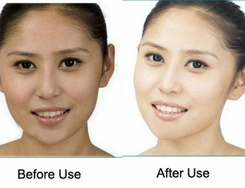 Kojic Acid Skin Lightening, Cream, Soap, Reviews and Side Effects