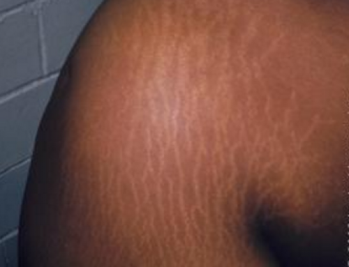 Stretch Marks on Arms, from Working Out, Bodybuilding, for no Reason, Best Removal Cream