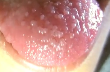 White Patches on Tongue, Side, Back, Under - Health MDs
