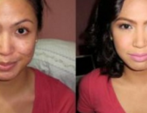 Alpha Arbutin Skin Lightening, Cream, Reviews, Serum, Side Effects, Before and After