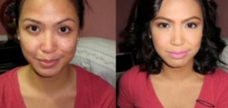 alpha arbutin before and after