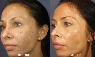 Sammy Sosa Side By Side >> Hydroquinone Before And After Black Skin | www.pixshark.com - Images Galleries With A Bite!