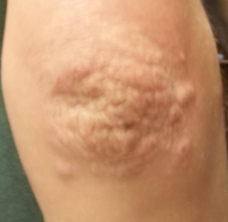 bumps on elbows