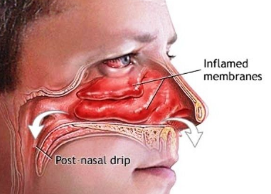 causes of a stuffy nose