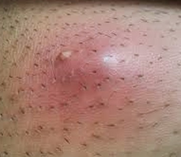 deep ingrown hair cyst pictures