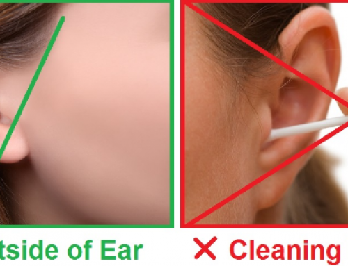 How to Clean Your Ears, Best Way, With Q Tips, Hydrogen Peroxide, Baby Oil or Candle and Impacted Ear Wax Removal