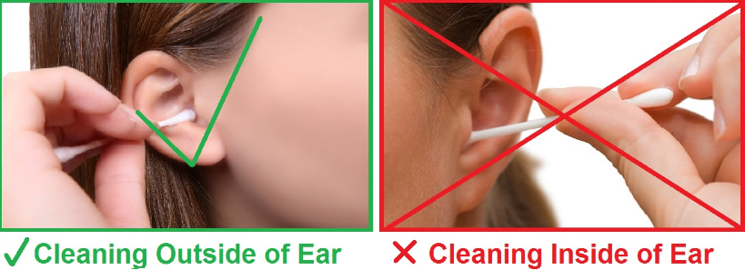 How to Clean Your Ears, Best Way, With Q Tips, Hydrogen Peroxide ...