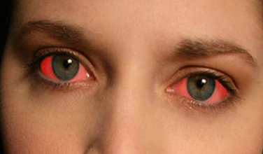 How to Make Your Eyes Red Fast: Bloodshot, to Look High ...