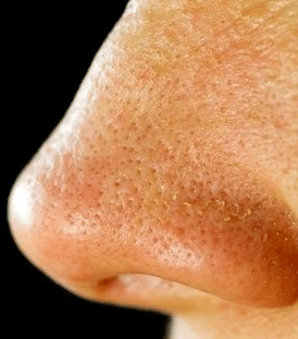 how to minimize large pores on nose