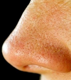 large pores on nose - photo #14