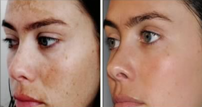 hydroquinone before and after skin