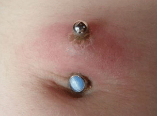 infected navel piercing