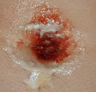 infected navel piercing discharge