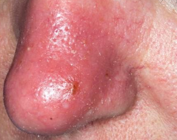 Strep Skin Infection Natural Treatment