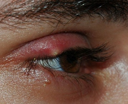 What is the white pimple on the white of the eye?