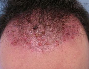 pimples on scalp under hair