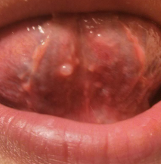 bumps in bottom of mouth