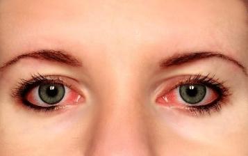 red bloodshot eyes