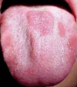 red patches on tongue