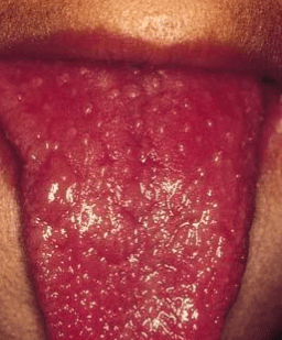 red spots on back of tongue