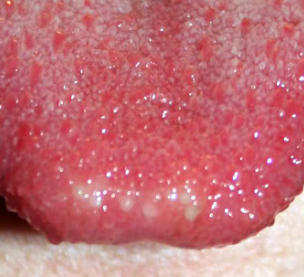 red spots on tip of tongue