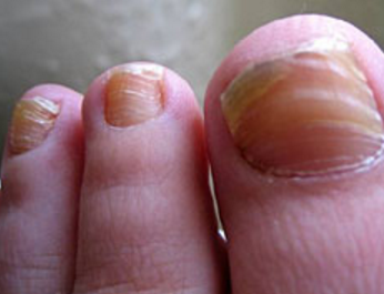 Ridges in Fingernails, Toenails, Vertical, Horizontal ... B12 Deficiency
