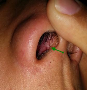 scabbing in ear