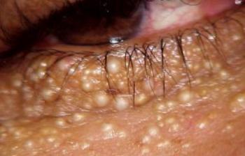 under eye bumps