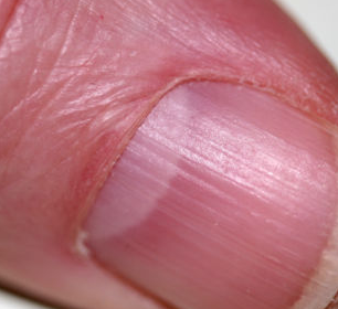 vertical ridges in fingernails