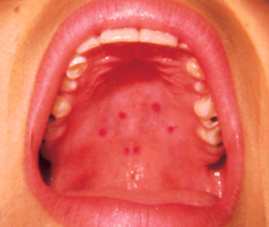 brown spot in mouth
