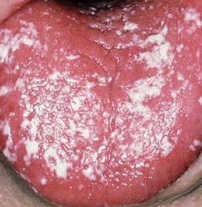 White patch in throat stds