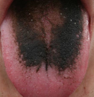 black coating on tongue