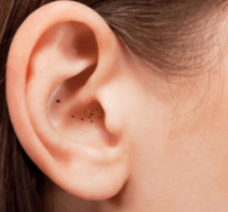 blackheads in ear